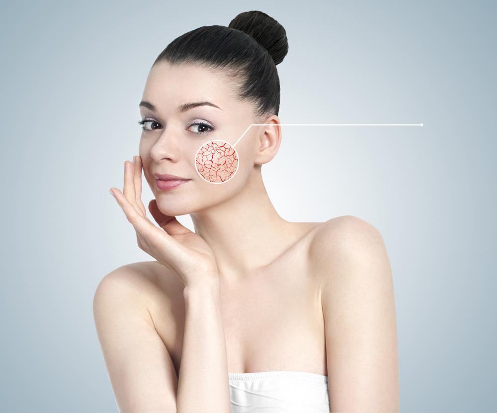 Лазерное удаление сосудов кожи, сосудистых звездочек, лечение купероза | ARISTO