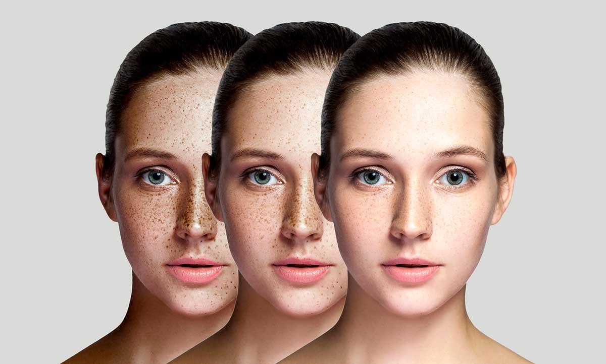 Лазерное удаление пигментных пятен на лице и руках: лазерная шлифовка | ARISTO