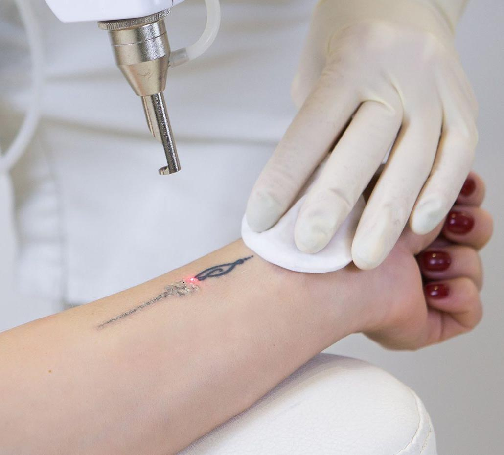 Удаление (сведение) тату лазером, выведение татуировок в Одессе | ARISTO